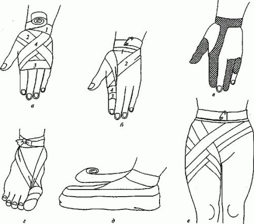 Перед наложением повязки руку